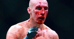 Rory MacDonald kończy drugą z rzędu walkę ze złamanym nosem